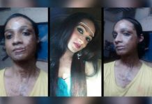 Sonia Sheikh transgender acid attack victim