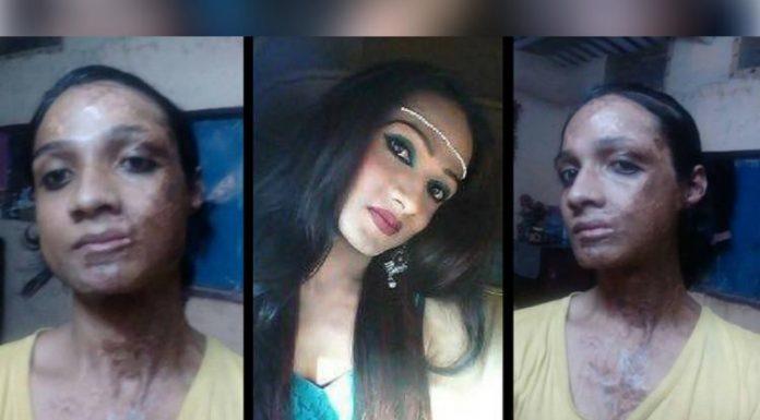 Sonia Sheikh transgender acid attack victim